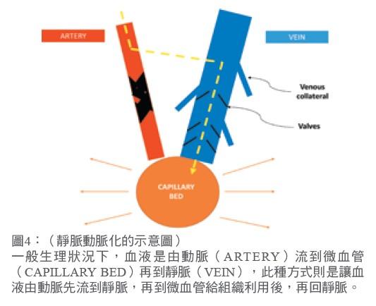 靜脈動脈化的示意圖