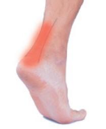 阿基里斯腱如果斷裂,走路會明顯無力。