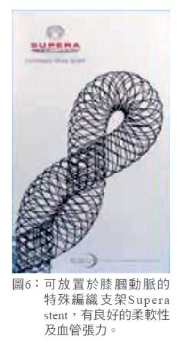 圖6: 可放置於膝膕動脈的特殊編織支架Supera stent,有良好的柔軟性及血管張力。