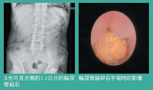X光可見左側約1.1公分的輸尿輸尿管鏡碎石手術時的影像管結石