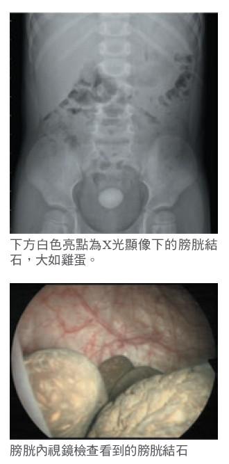 下方白色亮點為X光顯像下的膀胱結石,大如雞蛋。