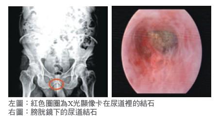 左圖:紅色圈圈為X光顯像卡在尿道裡的結石