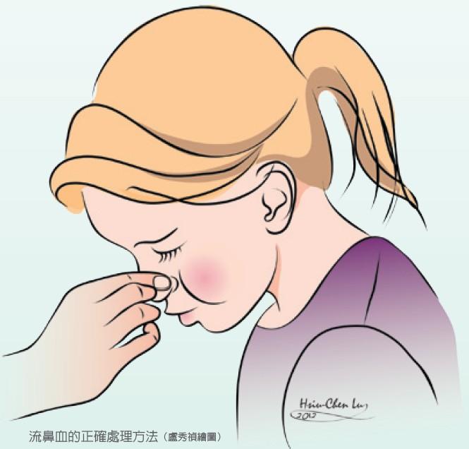 流鼻血的正確處理方法(盧秀禎繪圖)