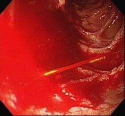 上消化道內視鏡檢查發現十二指腸有個巨大潰瘍正在噴血(陳洋源提供)