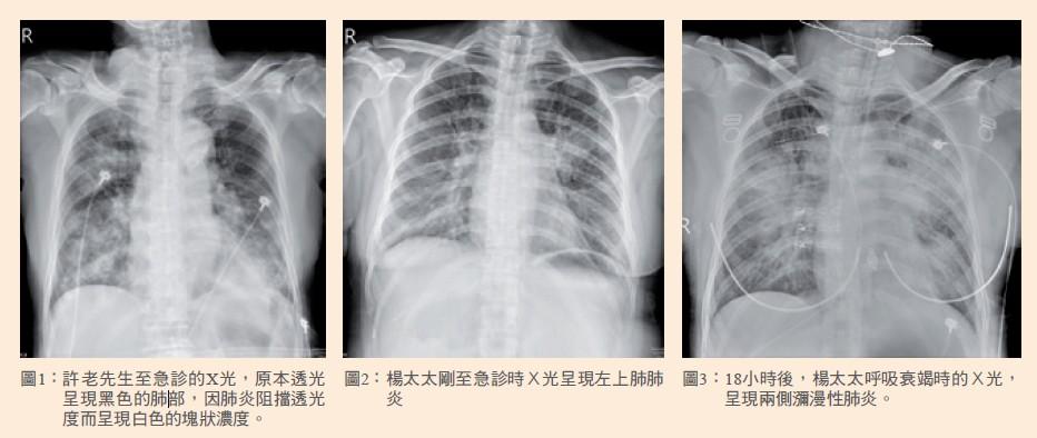 圖1: 許老先生至急診的X光,原本透光呈現黑色的肺部,因肺炎阻擋透光度而呈現白色的塊狀濃度。