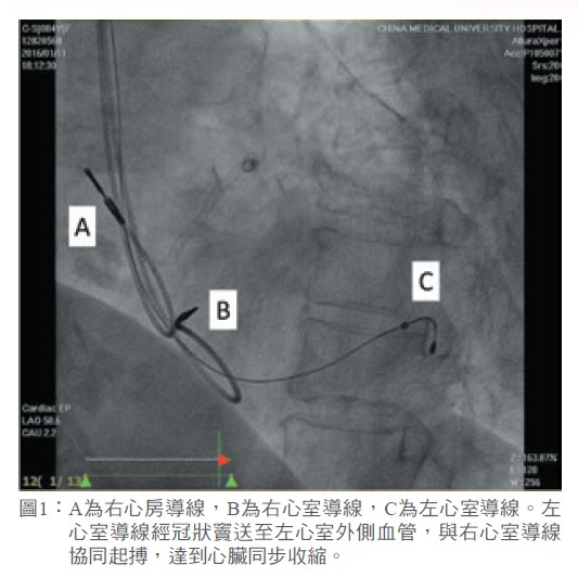 圖1: A為右心房導線,B為右心室導線,C為左心室導線