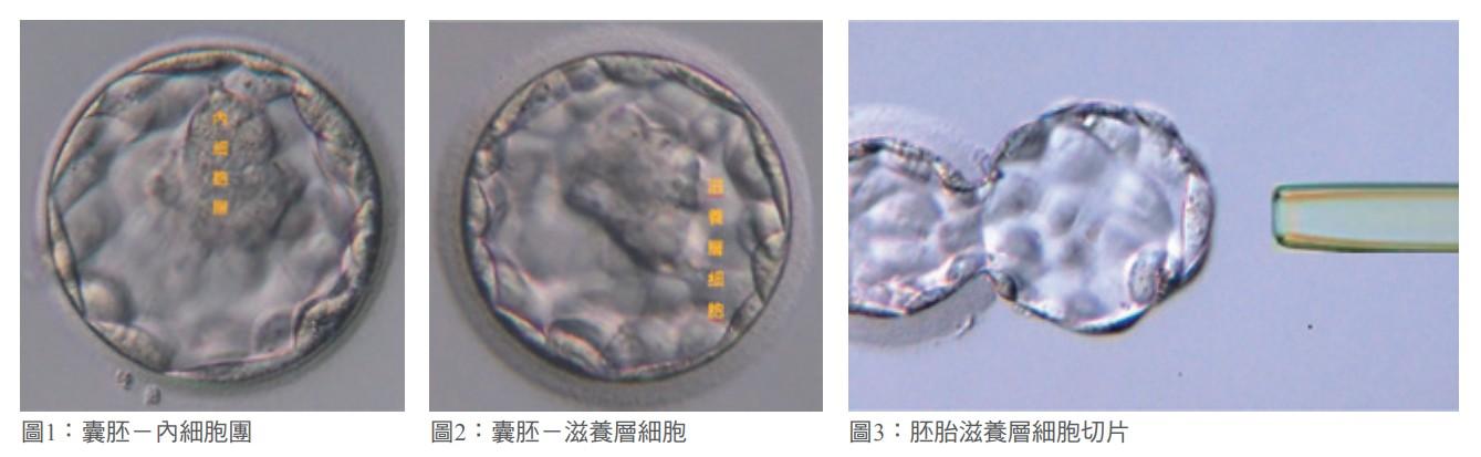 圖1:囊胚-內細胞團