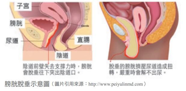 膀胱脫垂示意圖