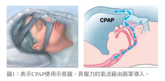 圖1:表示CPAP使用示意圖,具壓力的氣流藉由面罩導入。