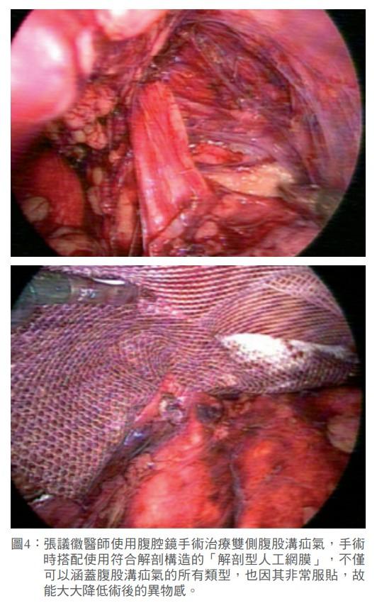 圖4: 張議徽醫師使用腹腔鏡手術治療雙側腹股溝疝氣