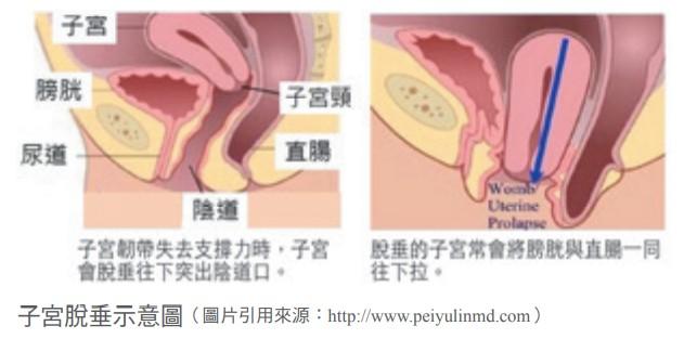 子宮脫垂示意圖