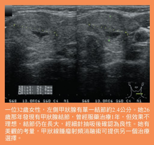 甲狀線腫瘤射頻消融術可提供另一個治療選擇
