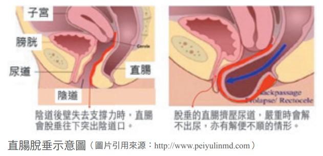 直腸脫垂示意圖