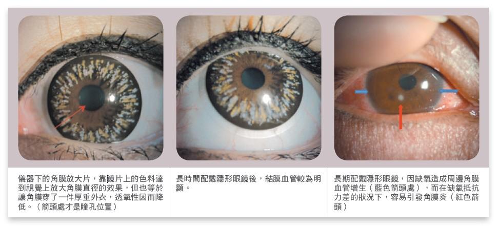 儀器下的角膜放大片,靠鏡片上的色料達到視覺上放大角膜直徑的效果