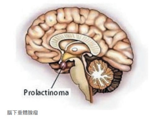 腦下垂體腺瘤