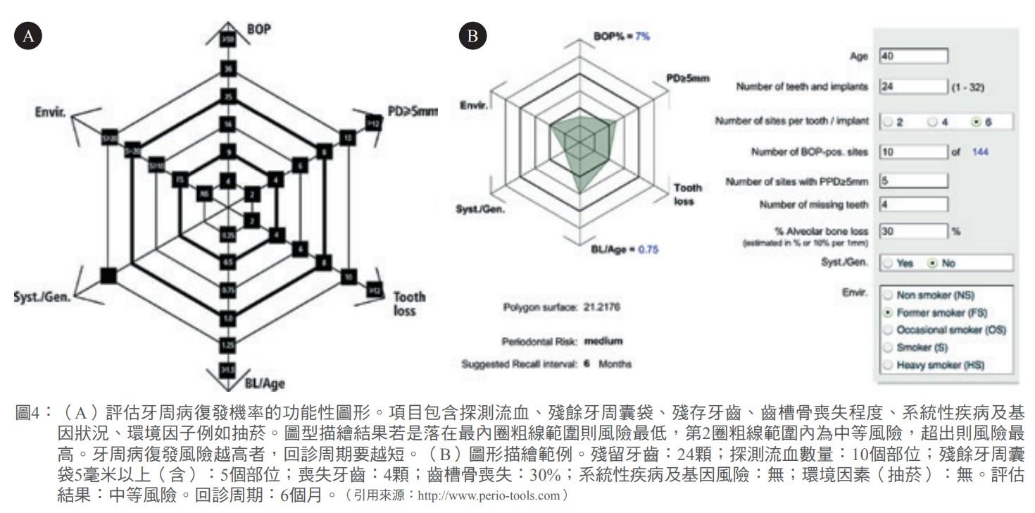 圖4:(A)評估牙周病復發機率的功能性圖形。