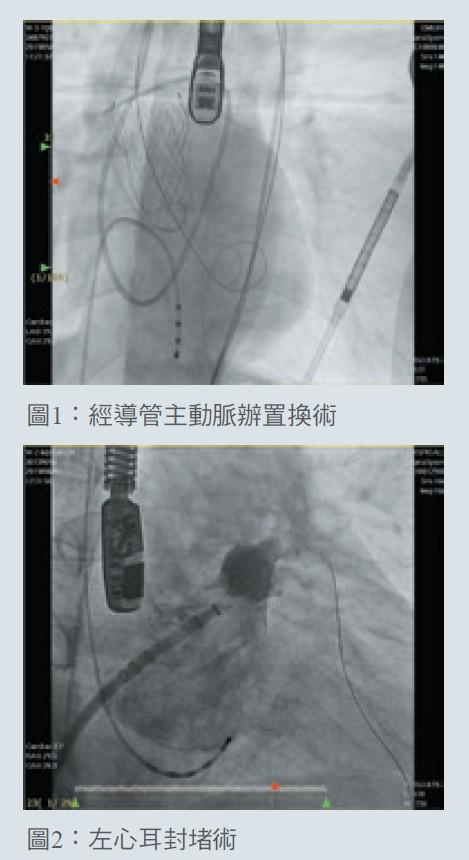 圖1:經導管主動脈辦置換術