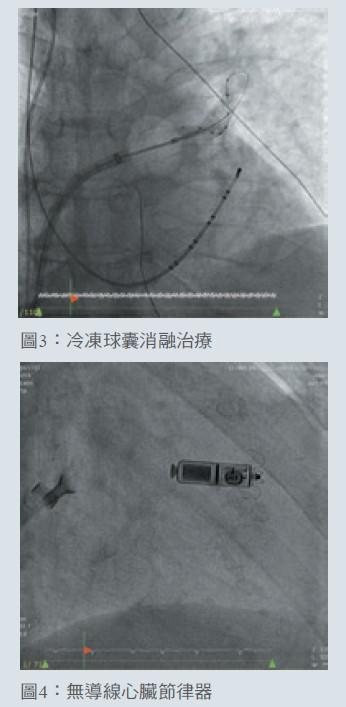 圖3:冷凍球囊消融治療