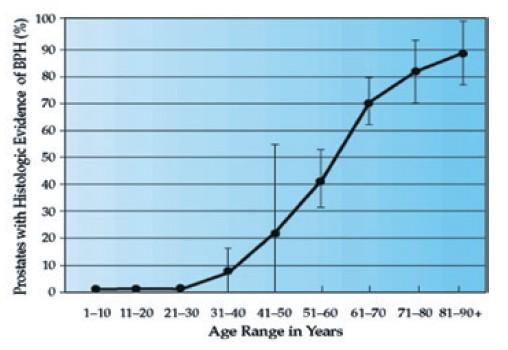 男性攝護腺肥大的發生率,會隨著年齡像爬樓梯一樣節節升高。