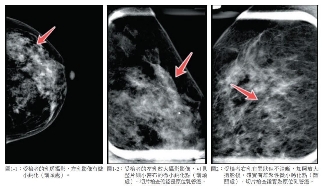 圖1-1: 受檢者的乳房攝影,左乳影像有微 小鈣化(箭頭處)。