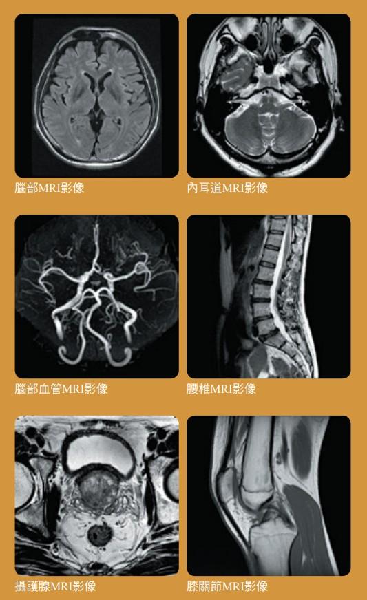 MRI影像