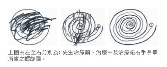 上圖由左至右分別為C先生治療前、治療中及治療後右手拿筆所畫之螺旋圖。