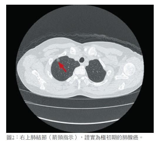 圖2:右上肺結節(箭頭指示),證實為極初期的肺腺癌。