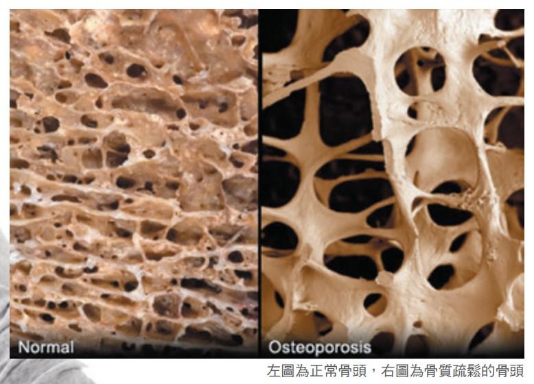 左圖為正常骨頭,右圖為骨質疏鬆的骨頭