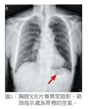 圖3: 胸腔X光片無異常陰影。箭頭指示處為胃裡的空氣。