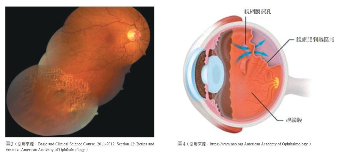 視網膜剝離