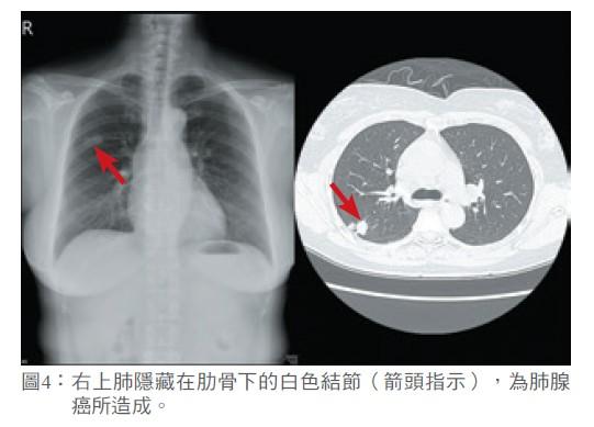 圖4: 右上肺隱藏在肋骨下的白色結節(箭頭指示),為肺腺癌所造成。