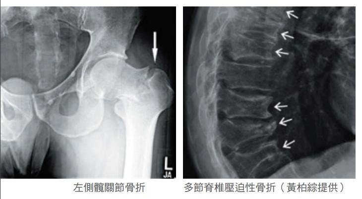 左側髖關節骨折 多節脊椎壓迫性骨折(黃柏綜提供)