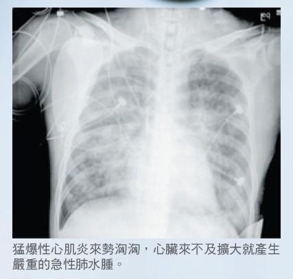 猛爆性心肌炎來勢洶洶,心臟來不及擴大就產生嚴重的急性肺水腫。