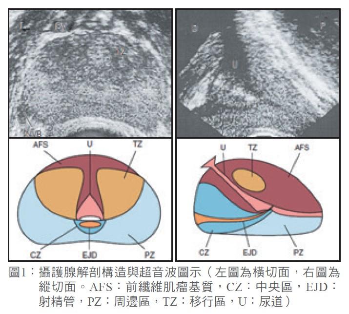 圖1: 攝護腺解剖構造與超音波圖示
