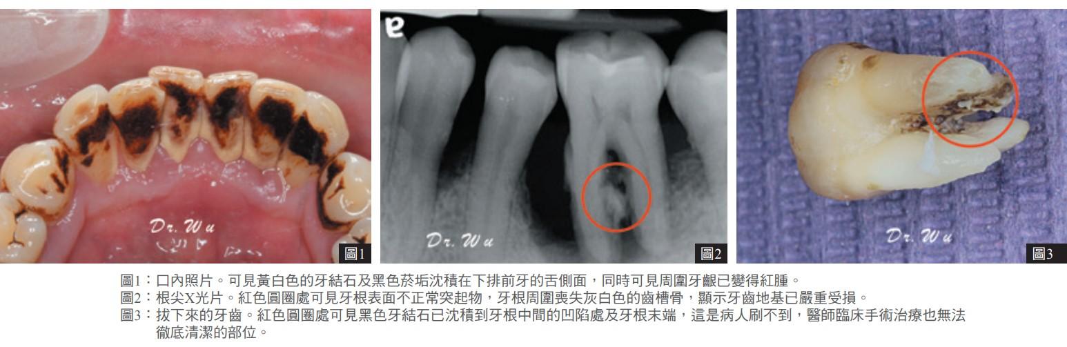 圖1:口內照片。可見黃白色的牙結石及黑色菸垢沈積在下排前牙的舌側面