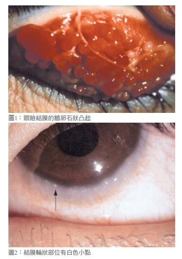 圖1:眼瞼結膜的鵝卵石狀凸起