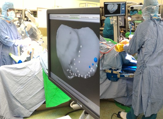 Prof. Hsu performing robotic-assisted surgery