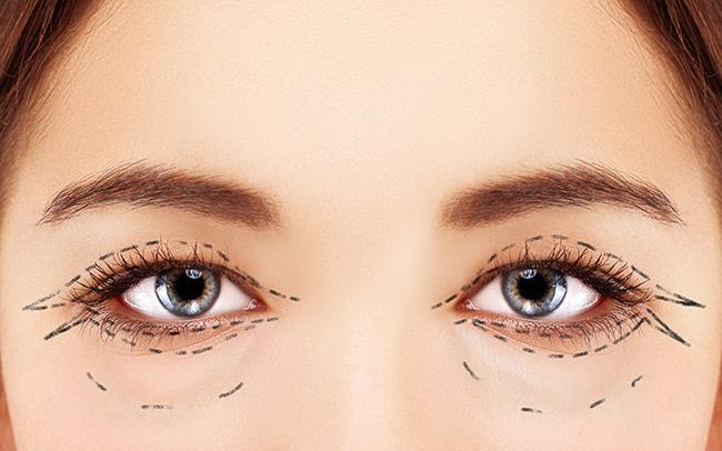 上眼瞼成形手術 美觀與功能兼具