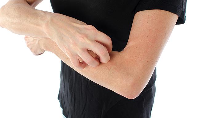乾癬好發季 病人應該怎麼吃?