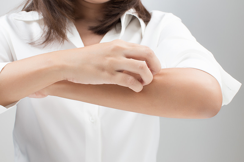 中醫診治蕁麻疹