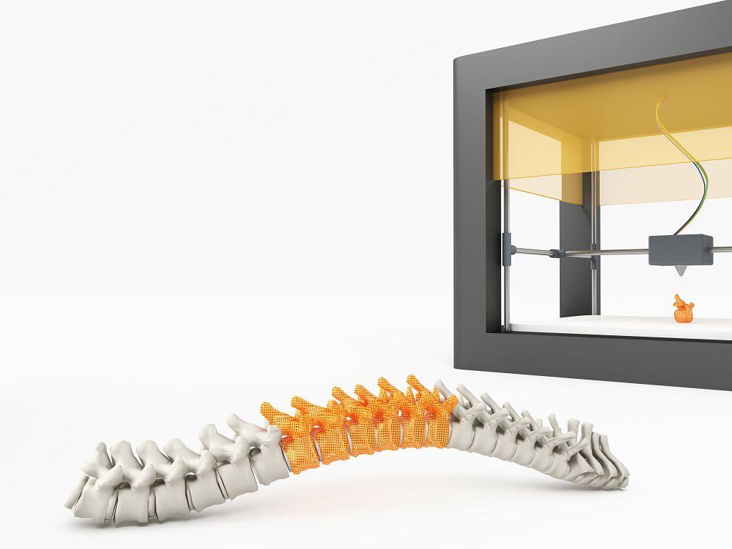 3D列印定位準 整治脊椎大利多
