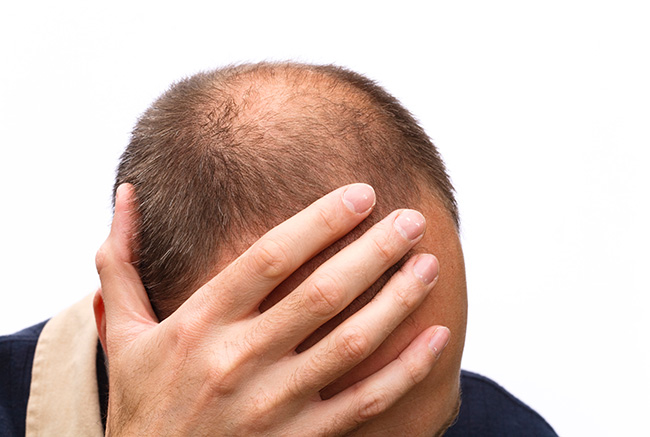 談雄性禿的成因與治療