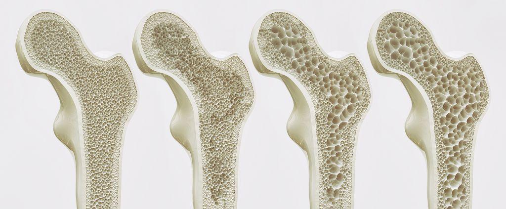 骨本就是老本 女性好發的骨質疏鬆症